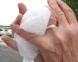 swollen finger with wedding ring still on: a man holds a bag of ice to his dislocated finger which quickly started to swell, but he did not know to take off his wedding ring