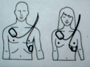 aed pad placement drawing adults