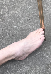 foot with a ruler next to it